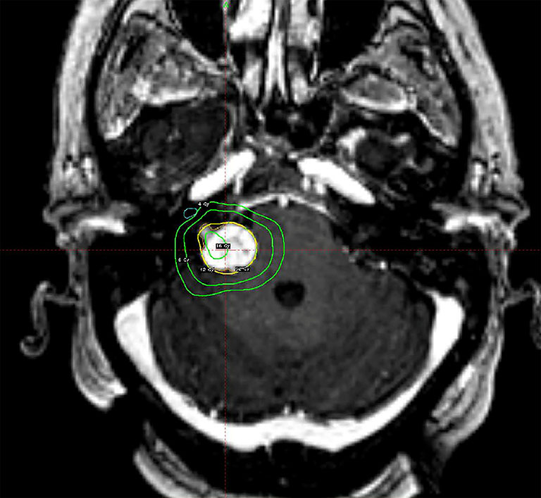Stereotactic radiosurgery of the brain: a review of common