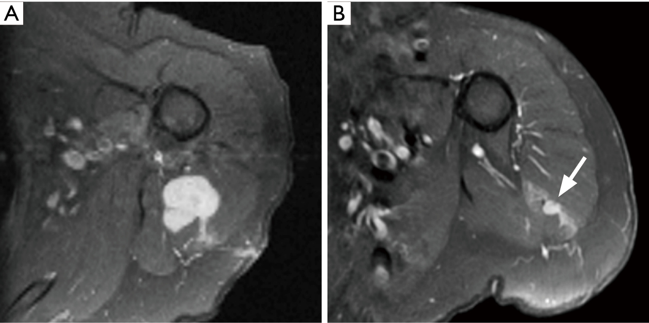 Imaging of soft tissue sarcomas - Patel - Chinese Clinical Oncology
